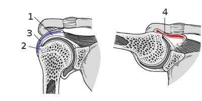 folyadék az acromioclavicularis ízületkezelésben)