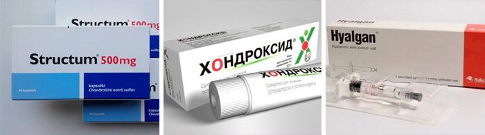 Kenőcs az ízületek kezelésére - a legnépszerűbb gyógyszerek listája - Kár