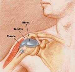 vállízületi bursitis kezelés