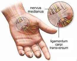 fájdalom a jobb kéz csuklójában az összes ízület fájdalma megnövekedett bilirubinszint