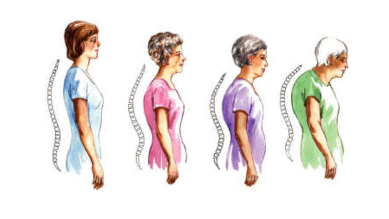 csavarja a térdét ízületi gyulladás tünetei hogyan kell kezelni