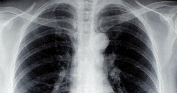 ízületi fájdalom tüdőrákban)