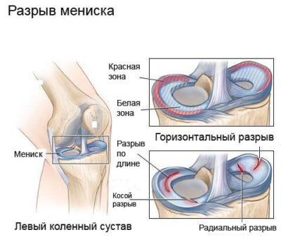 a bal térdízület oldalsó meniszkuszának károsodása