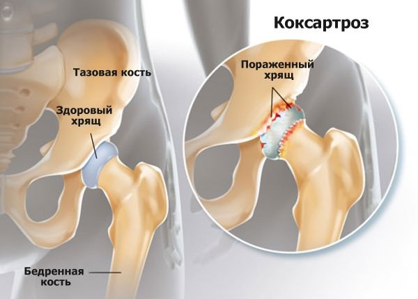 a boka ízületének deformáló artrózisa gyógyszeres kezelés