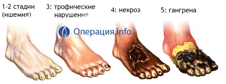 a bokaízület ízületeinek sérülésének mértéke