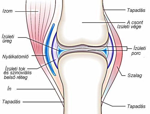 a csípőízület deformáló ízületi gyulladása okozza