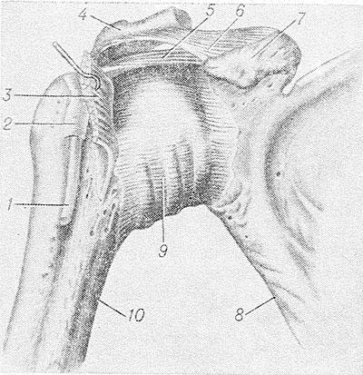 a könyökízület szubchondrális szklerózisa