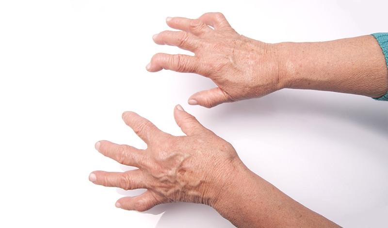 a kéz reumás ízületi gyulladása