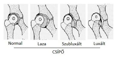 a láb fordulásakor a csípőízület fájdalma)