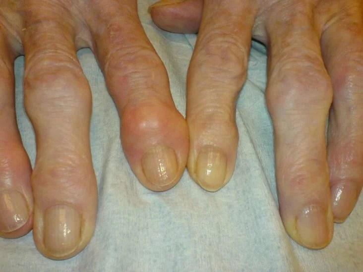 a lábközi interphalangealis artrosis hogyan kezeljük az ízületi fájdalmakat cukorral