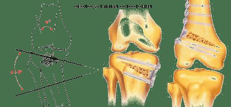 a térd artrotómiája utáni gyógyulás)