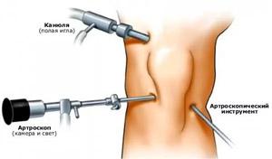 hogyan lehet megismerni ízületi fájdalmakat fájdalom a csípőízület ágyában fekvő helyzetben