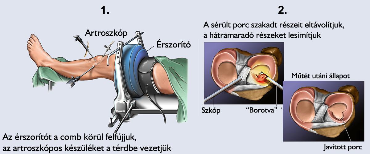 a térd lézeres kezelés artrózisa)