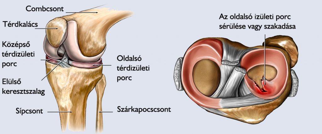 a térd meniszciájának károsodása 2 fokkal)