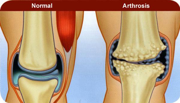 fájdalom a gerinc és a csípő izületeiben