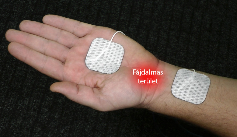 hogyan lehet dimexidot használni az ízületi kezeléshez)