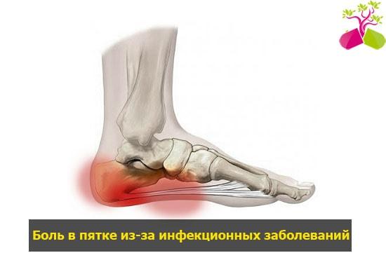 fájdalom a térdízületeken)