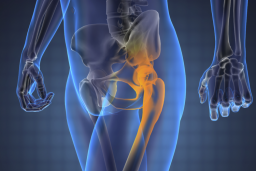 csípő artrózisa, ahol kezelni