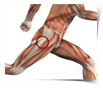 a csípőfájdalom oka a csípőízületek alulfejlettsége