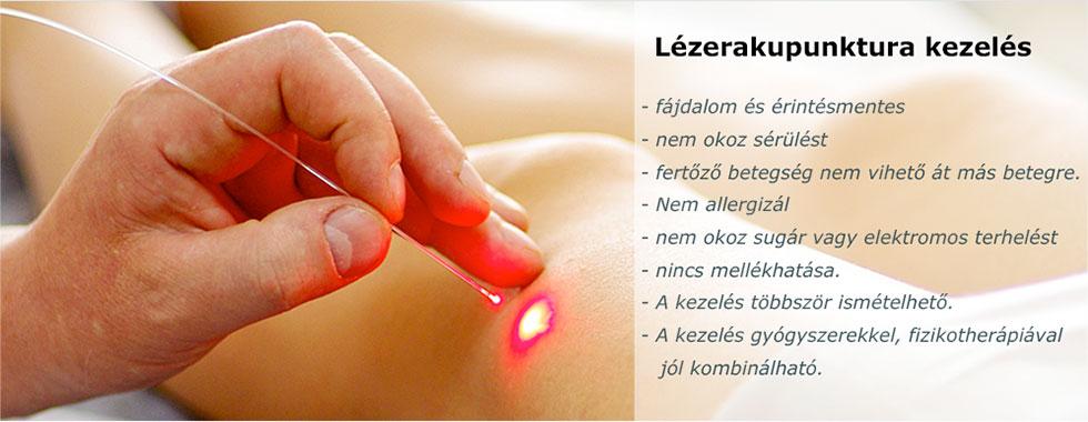 lézeres kezelés a kéz arthrosisában)