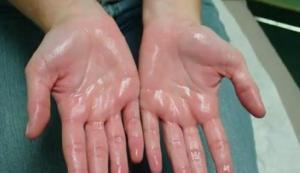 fáj a kis láb ízülete corvalol ízületi kezelés