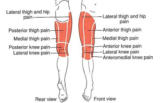 amikor a fájdalom eltűnik a csípőpótlás után