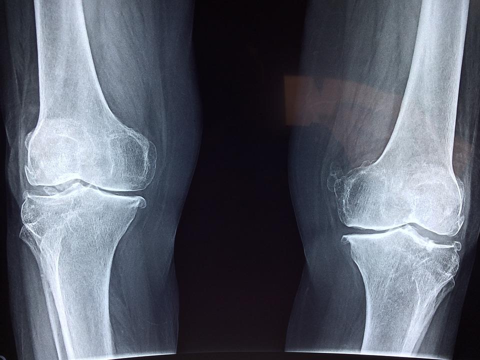 arthrosis kezelés a keleti orvoslásban