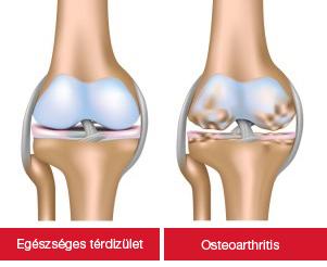 artrózis kezelése nagyban)