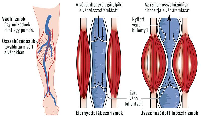 az alsó végtagok kiürülő artrózisa kezelés modern gyógymód az artrózisról