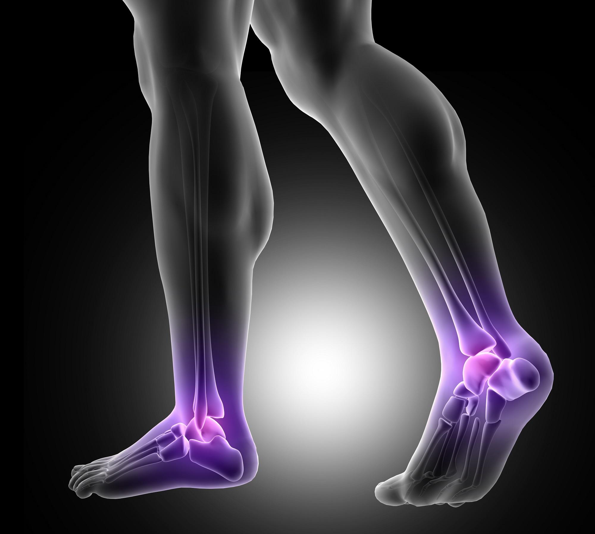 az alsó végtagok ízületei és a láb fáj
