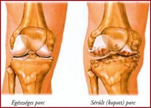 térdízület izma térdízület kezelési kenőcs készítmények artrózisa