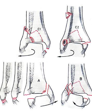 jégkorong boka sérülések