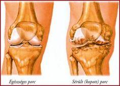 a térd artritisz fajtái)