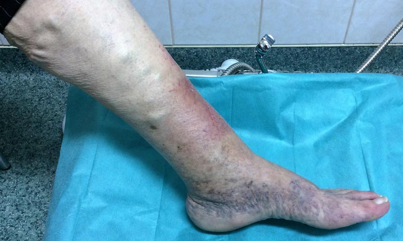 az alsó lábszár tünetei és kezelése