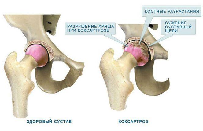 kórtörténet a combcsont hamis ízülete limfosztázis térd artrózissal