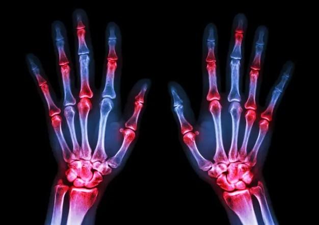ahol a legjobb módszer a rheumatoid arthritis kezelésére