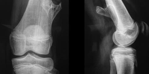 10 csont- és ízületi betegség osztály