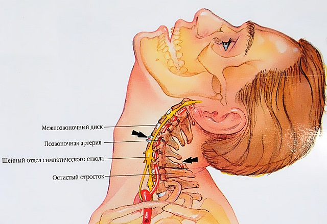 gélek az osteochondrosis fájdalmáért)