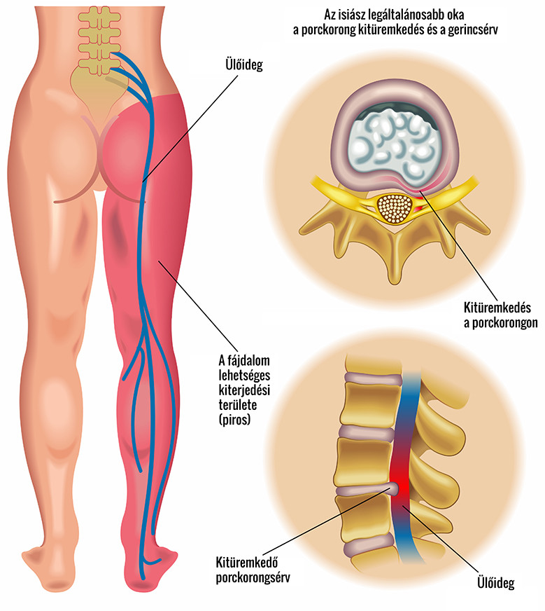 Részleges csípő sérülés