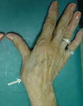 bepattan a hüvelykujjízület fájdalmára