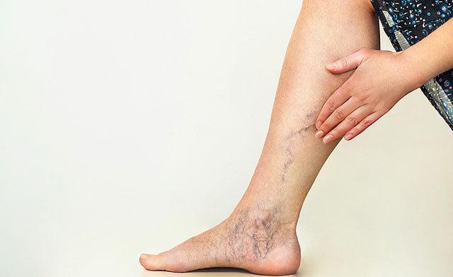 ízületi fájdalom, mint egy betegség tünete melyik kenõcs jobb a térdízületek artrózisához