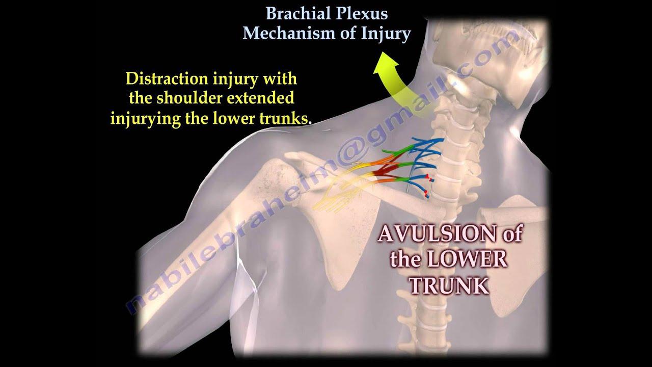 brachialis artrózis kezelési fórum)