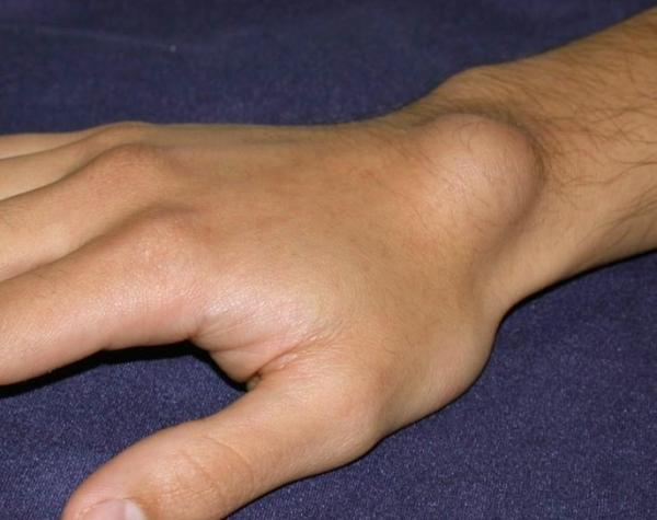 Reumatológia: ízületi fájdalmak, ízületi duzzanatok