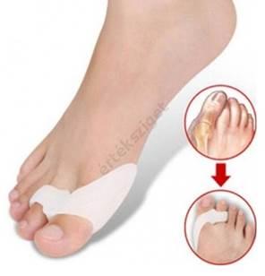 a 2. fokú kezelés lábujjai artrózisa)
