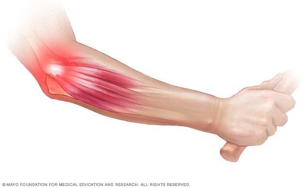 epicondylitis könyökízület kezelése