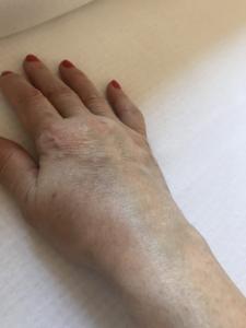 térdbursitis gyulladása