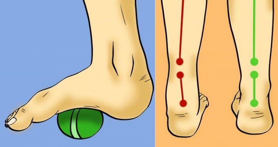 csípőfájás a lapos lábak miatt