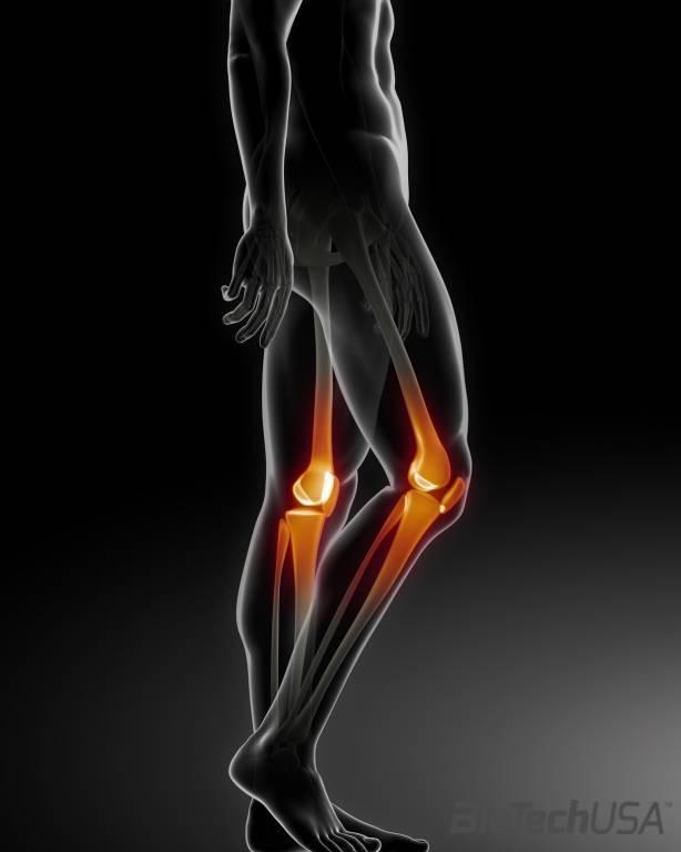 új technológiák a térd artrózisának kezelésére