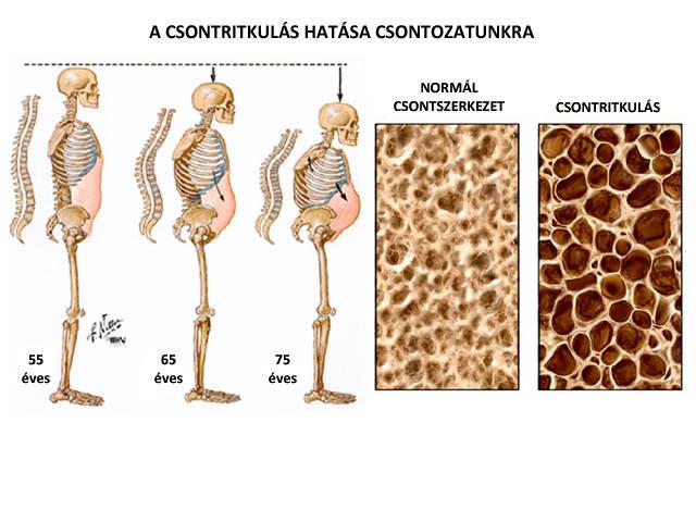 ízületi krém malavtilin boka ízületi gyulladás kezelésére szolgáló gyógyszerek