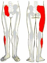 csípő- és lábfájdalom)